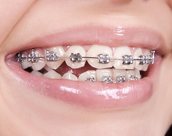 tratamiento de ortodoncia para niños y adultos