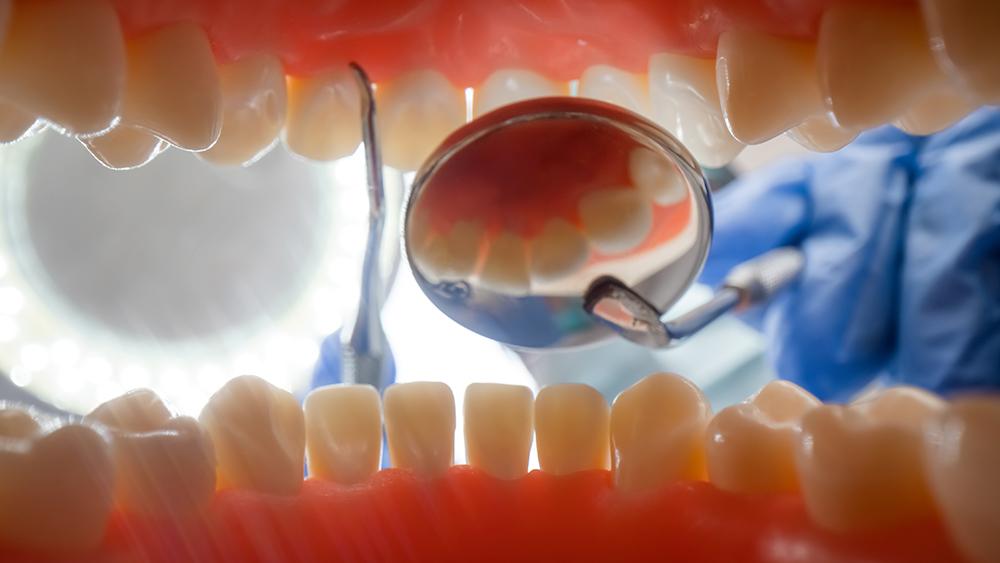 Estética dental Madrid
